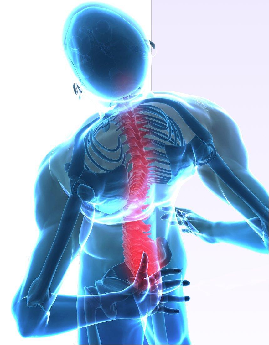 Tut das Unterteil des Bauches weh und gibt in den Rücken dass es zurück